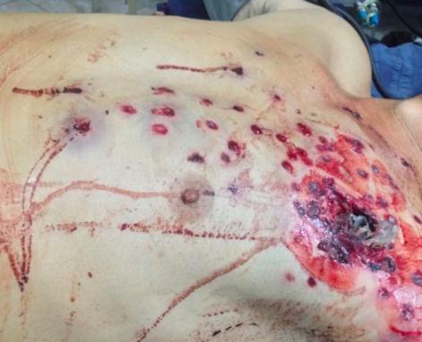 Las balas de goma que recibió un trabajador chino fueron consideradas como tentativa de homicidio y un jefe de seguridad está demandado.
