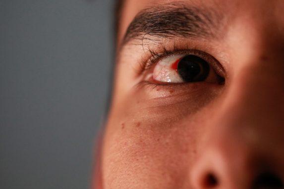 Casi un mes después de la agresión, Luis aún tiene dañado un ojo. Foto: Carlos Sebastián