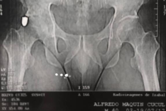 Radiografía de Alfredo Maquín.