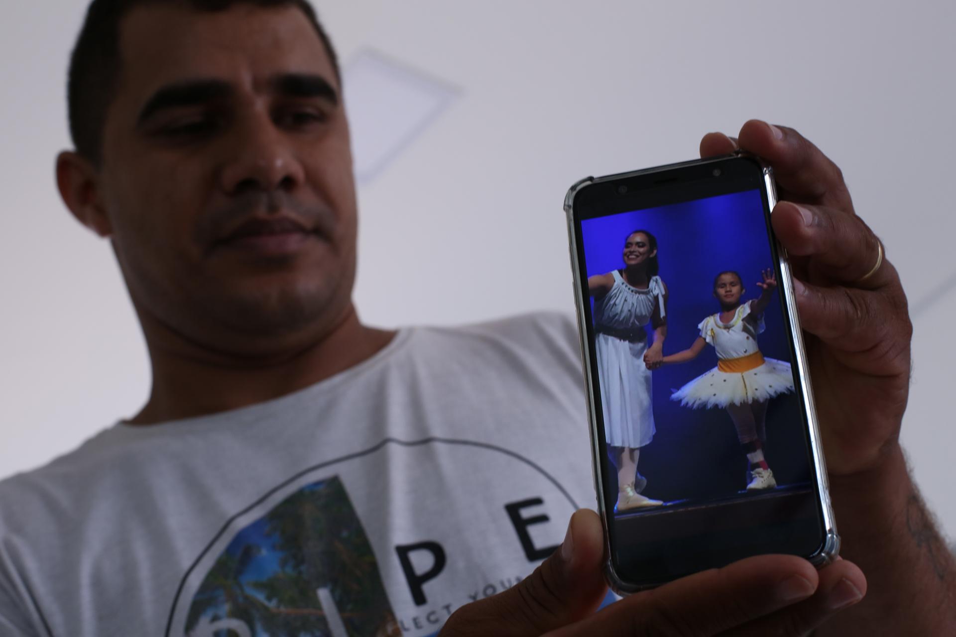 Emanuelly, hija de Antonio Correa, nació con un tipo de malformación.
